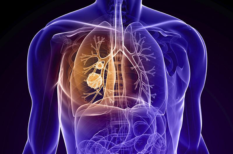 όγκοι πνεύμονος